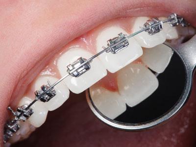 braces rydalmere