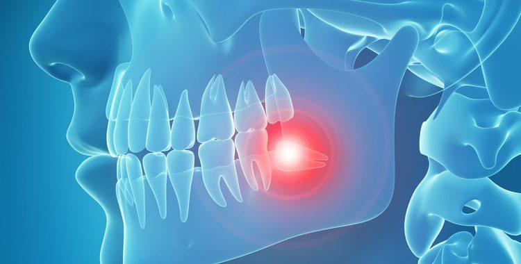 Temporomandibular Jaw Disorders (TMJ)