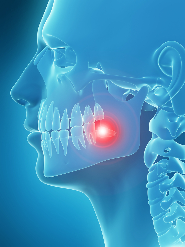 Temporomandibular Jaw Disorders (TMJ)