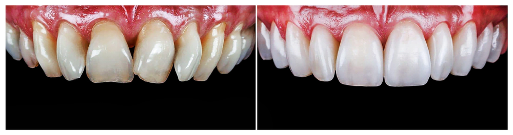 Wisdom Teeth Rydalmere Implant Dundas Invisalign Dundas