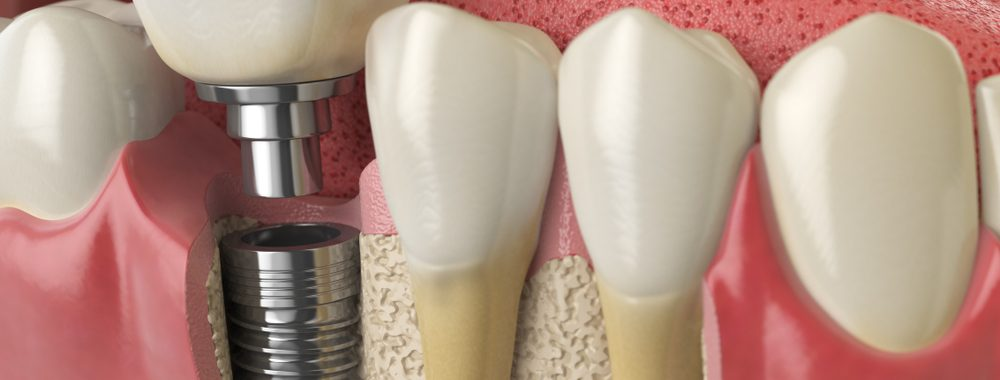 Implant Rydalmere Dentist Implant Dundas Dental Implant Oatlands Dentist Telopea Dental Implant
