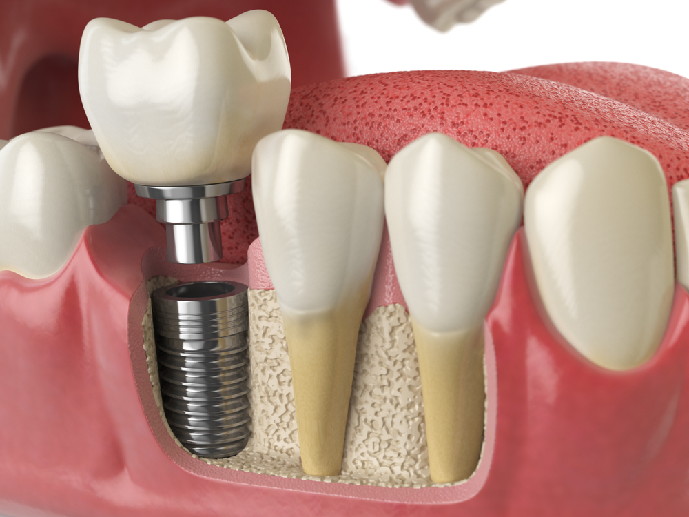 Implant Rydalmere Dentist Implant Dundas Dental Implant Oatlands Dentist Telopea Dental Implant