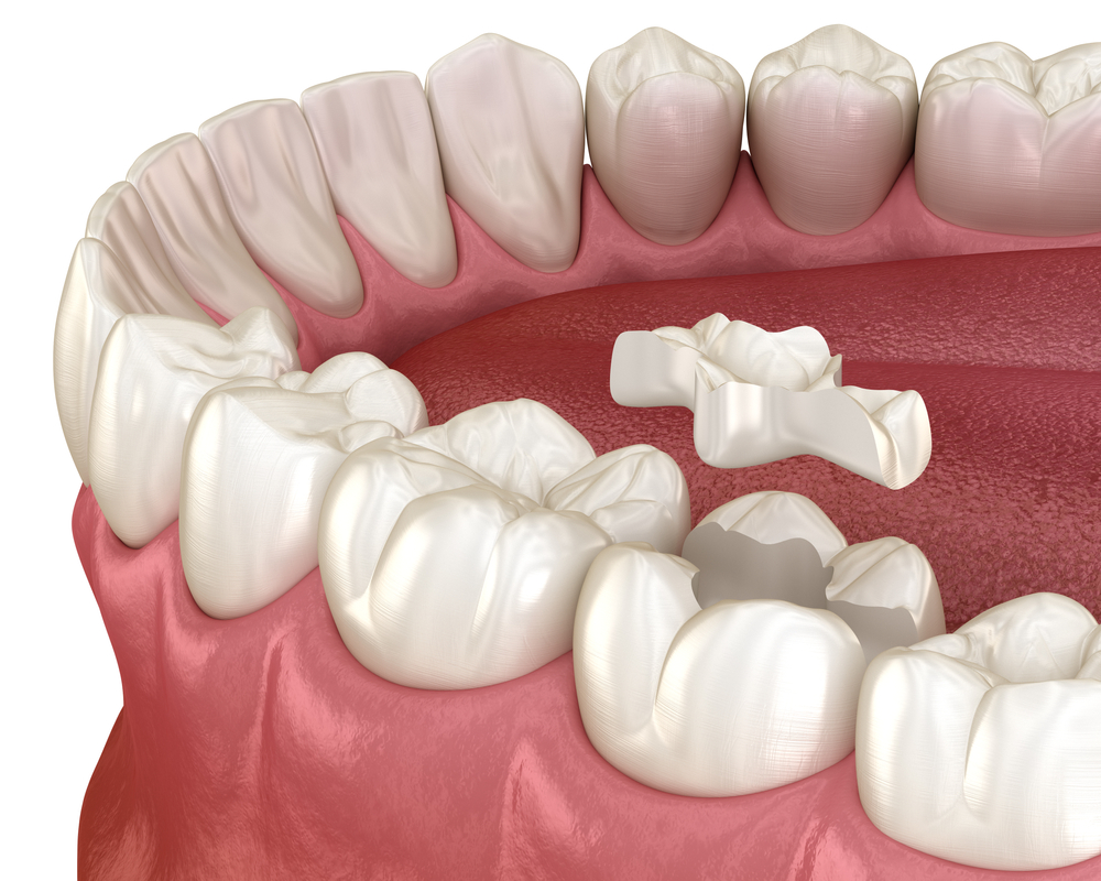 Dentist Newington Wisdom Teeth Denistone Invisalign Telopea