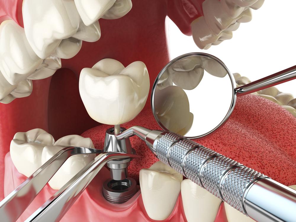 Implant Denistone dental newington