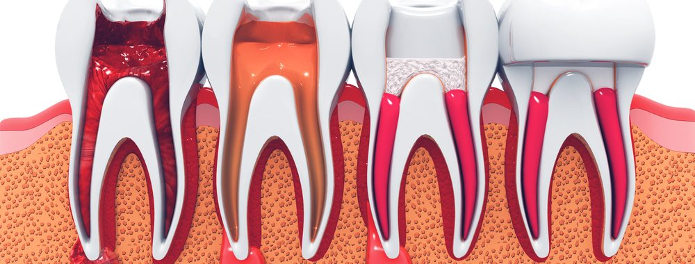 Newington Dentist. Newington Dental. Dental Newington. Dentist Newington.