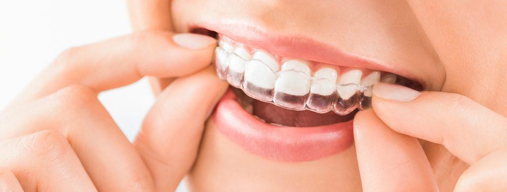 Invisalign Rydalmere Dental Newington dental