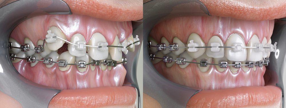 dentist dundas dundas dentist dental dundas dundas dental