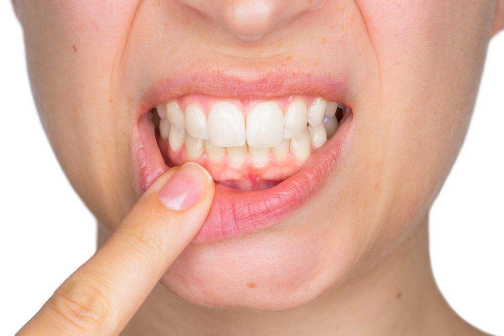 dentist dundas dundas dentist dental dundas dundas denta