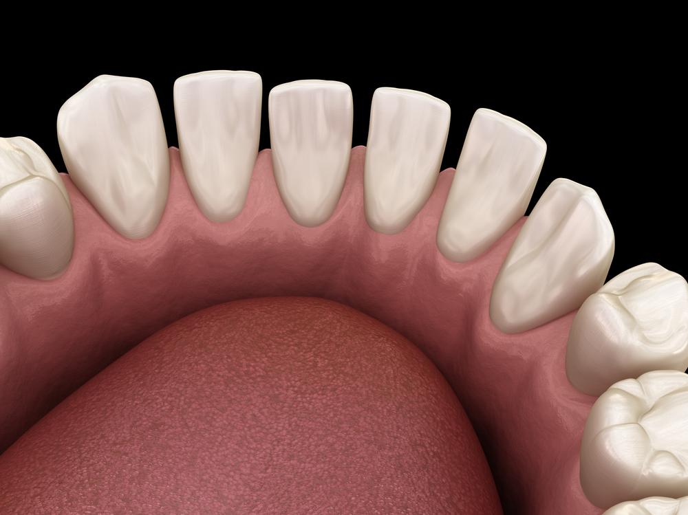 Newington Dentist Dental Newington